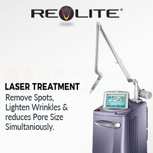 Revlite Laser